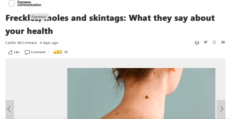 Freckles, moles and skintags: What they say about your health
